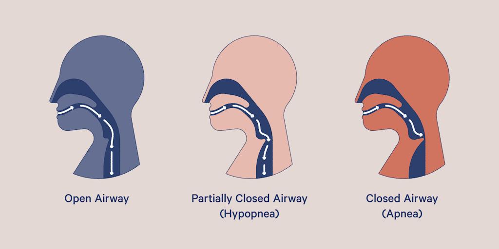 complex sleep apnea